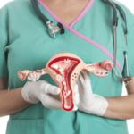 Mioma uterino: o que ele faz com o corpo da mulher?